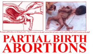 Partial birth abortion
